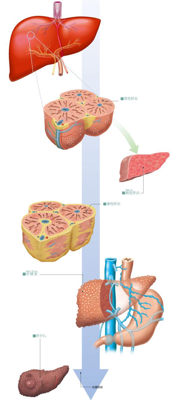 肝炎 劇 症